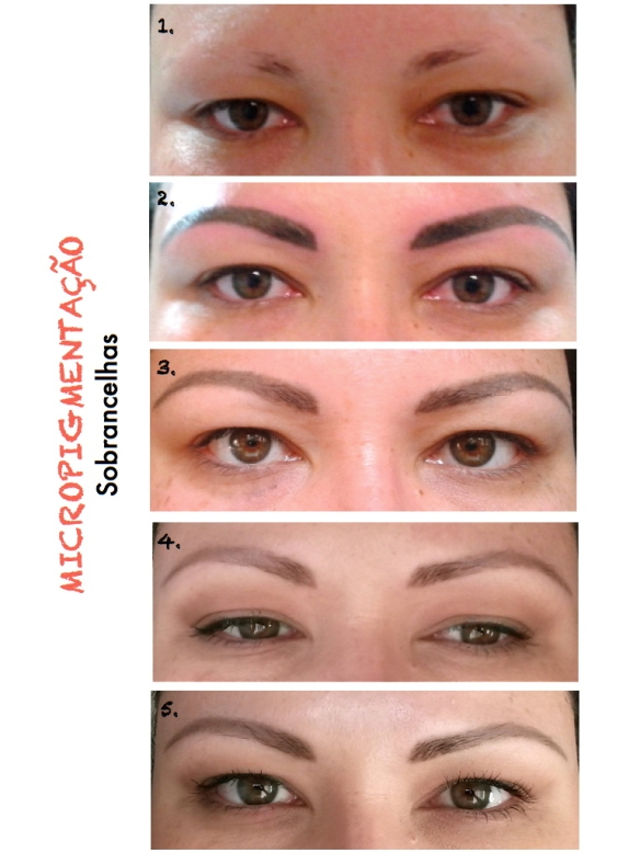 Micropigmentação de sobrancelhas - Porto Alegre | NND